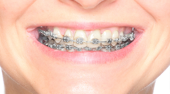 Traditional Orthodontics